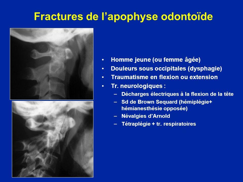 Fractures de l'apophyse odontoïde
