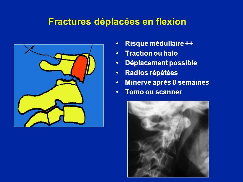 Fractures déplacées en flexion