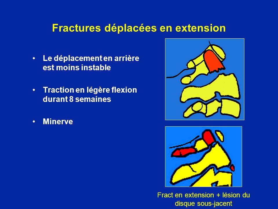 Fractures déplacées en extension