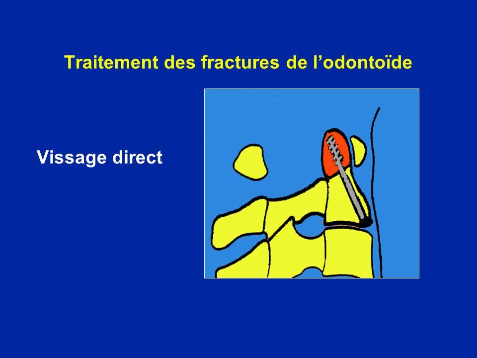 Traitement des fractures de l'odontoïde