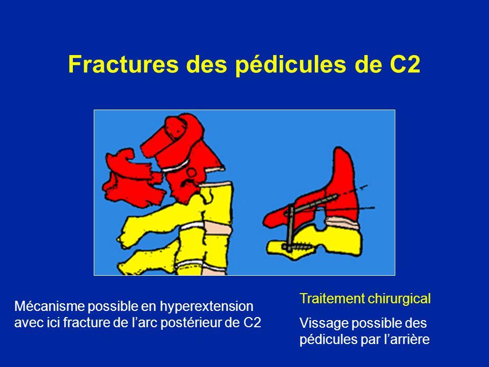 Fractures des pédicules de C2