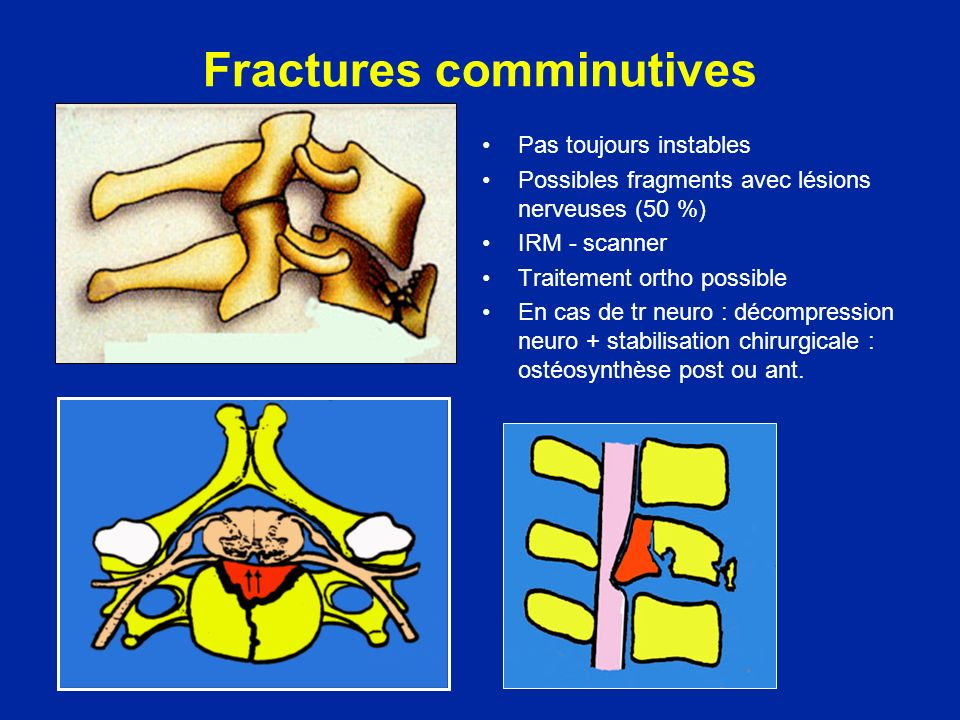 Fractures comminutives