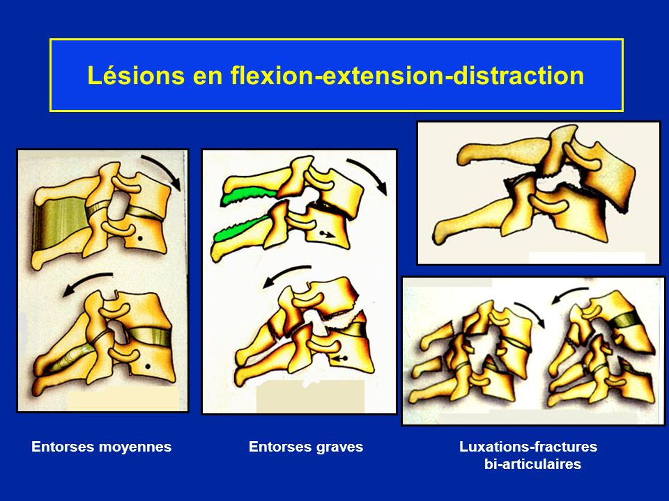Lésions en flexion-extension-distraction