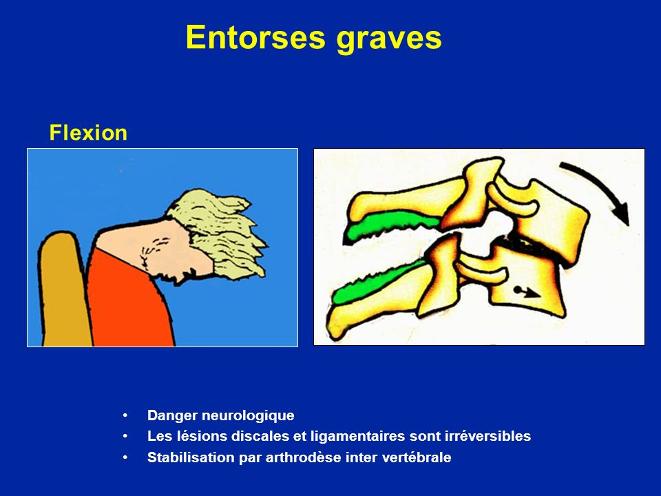 Entorses graves Flexion Danger neurologique