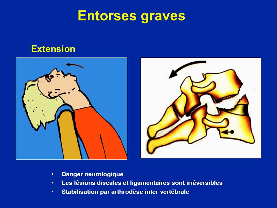 Entorses graves Extension Danger neurologique
