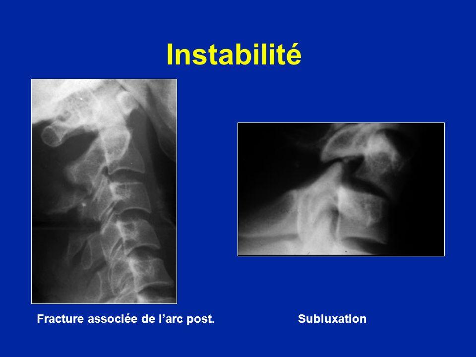 Instabilité Fracture associée de l'arc post. Subluxation