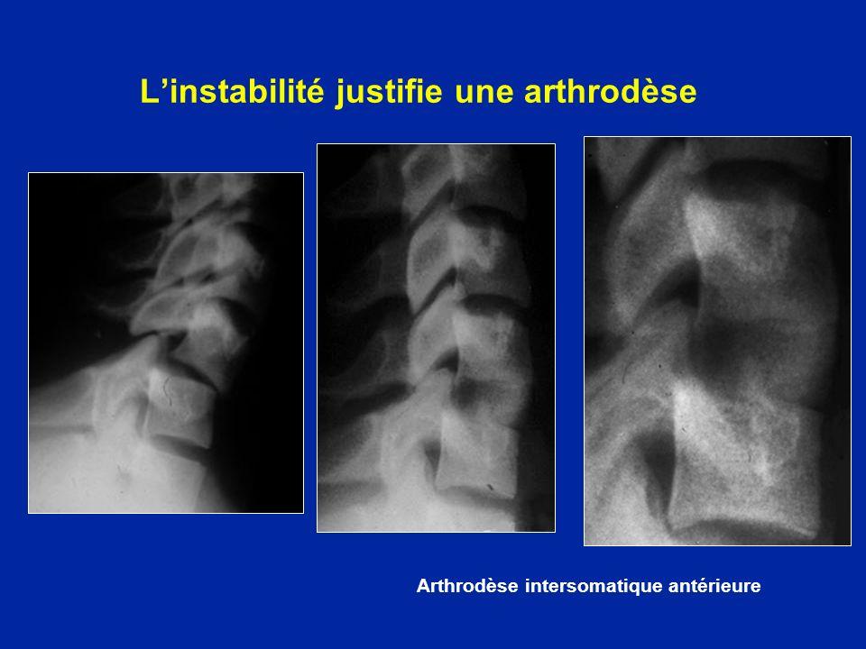 L'instabilité justifie une arthrodèse