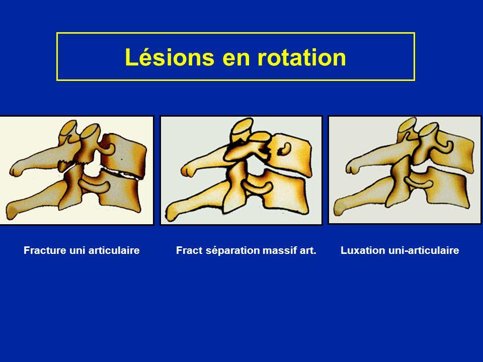Lésions en rotation Fracture uni articulaire Fract séparation massif art.