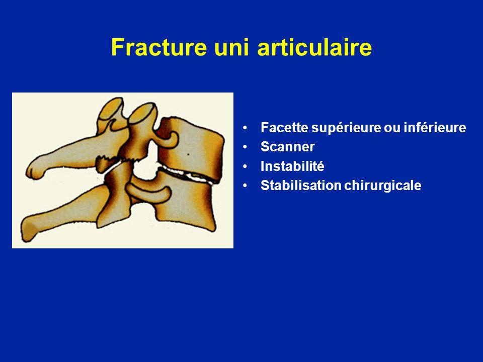 Fracture uni articulaire