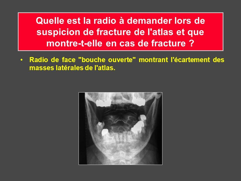 Quelle est la radio à demander lors de suspicion de fracture de l atlas et que montre-t-elle en cas de fracture