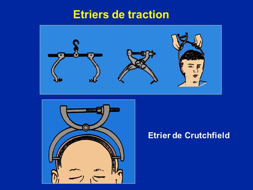 Etriers de traction Etrier de Crutchfield