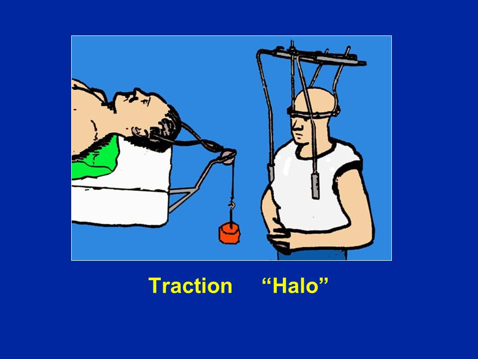 Traction Halo