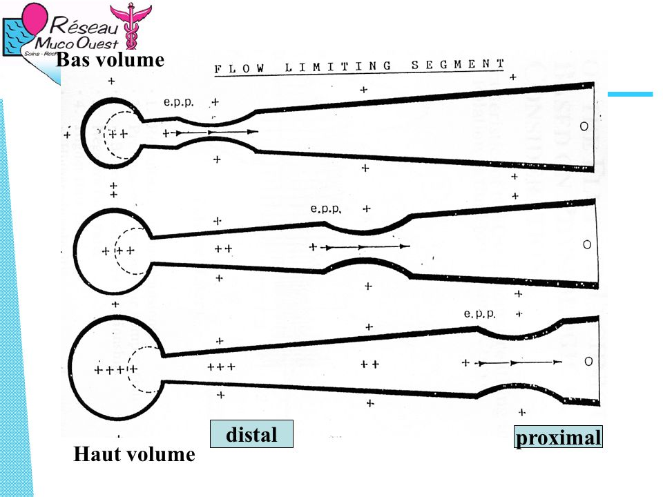 Bas volume distal proximal Haut volume