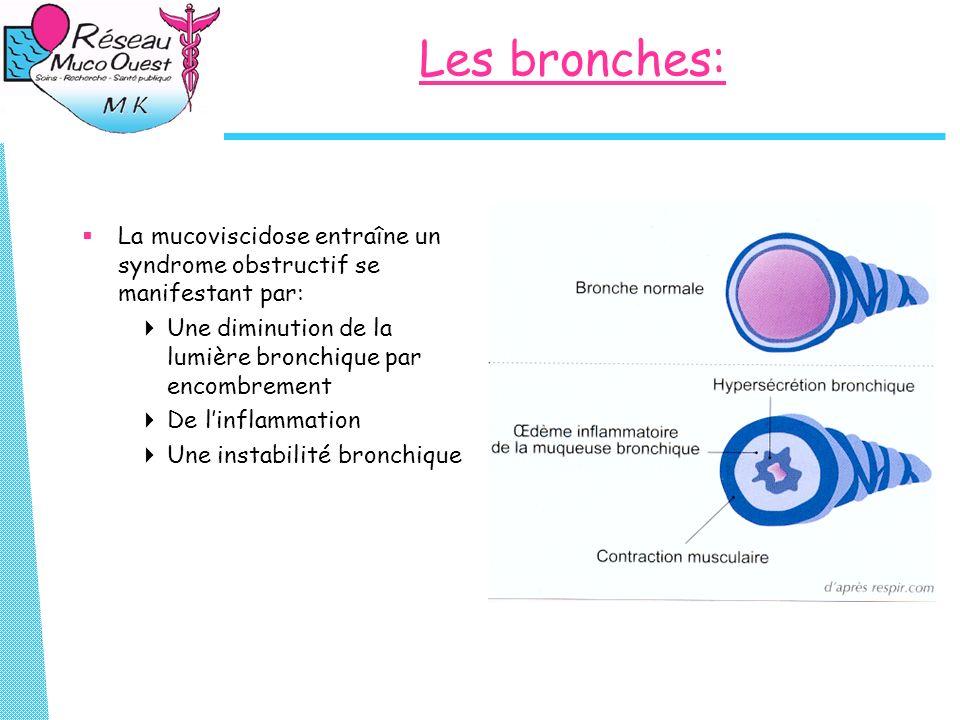 Les bronches: La mucoviscidose entraîne un syndrome obstructif se manifestant par: Une diminution de la lumière bronchique par encombrement.
