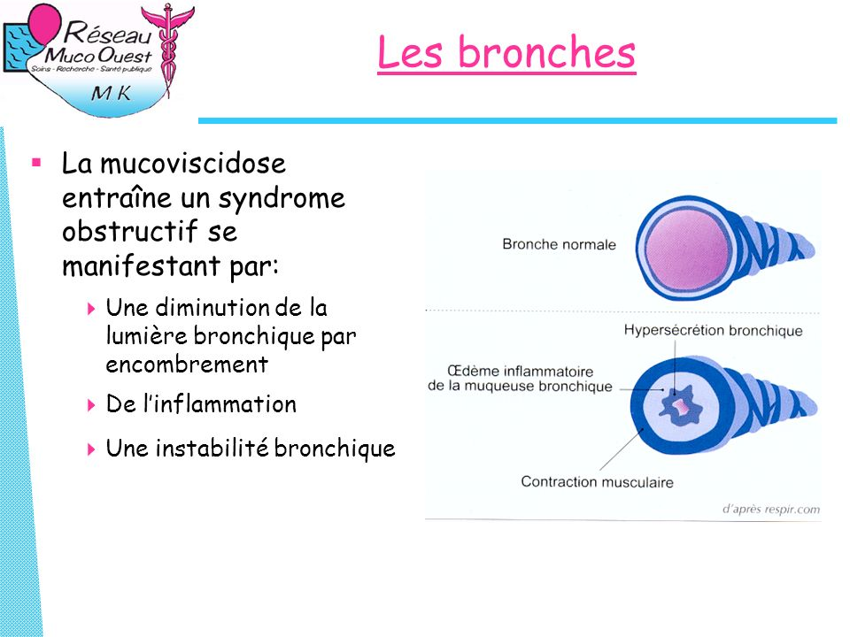 Les bronches La mucoviscidose entraîne un syndrome obstructif se manifestant par: Une diminution de la lumière bronchique par encombrement.