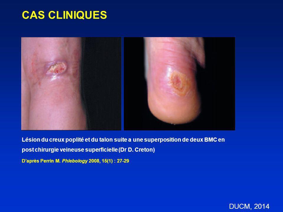 CAS CLINIQUES Lésion du creux poplité et du talon suite a une superposition de deux BMC en. post chirurgie veineuse superficielle (Dr D. Creton)