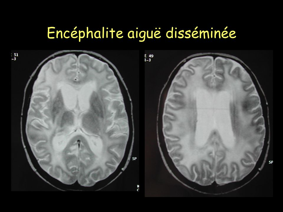 Encéphalite aiguë disséminée