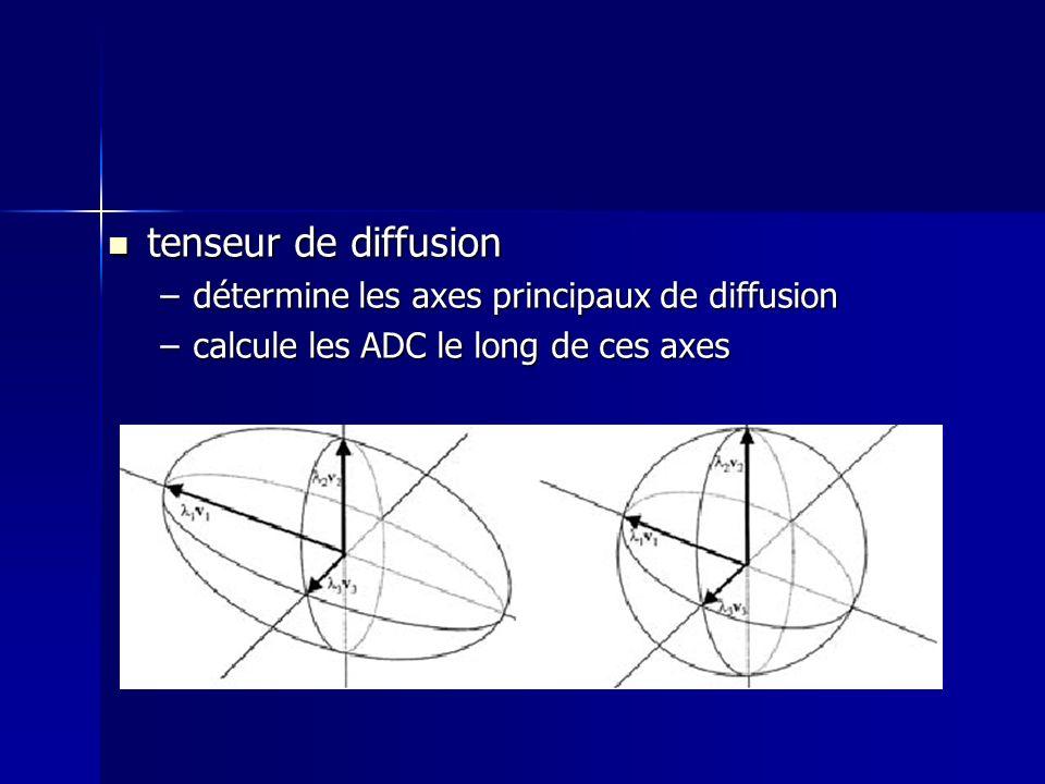 tenseur de diffusion détermine les axes principaux de diffusion