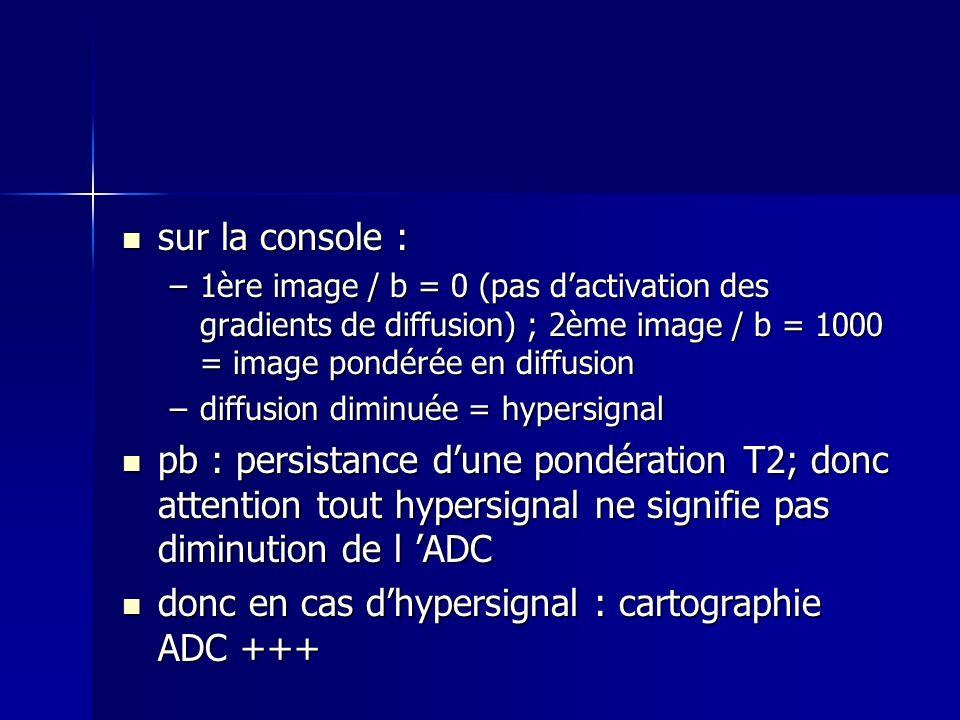 donc en cas d'hypersignal : cartographie ADC +++
