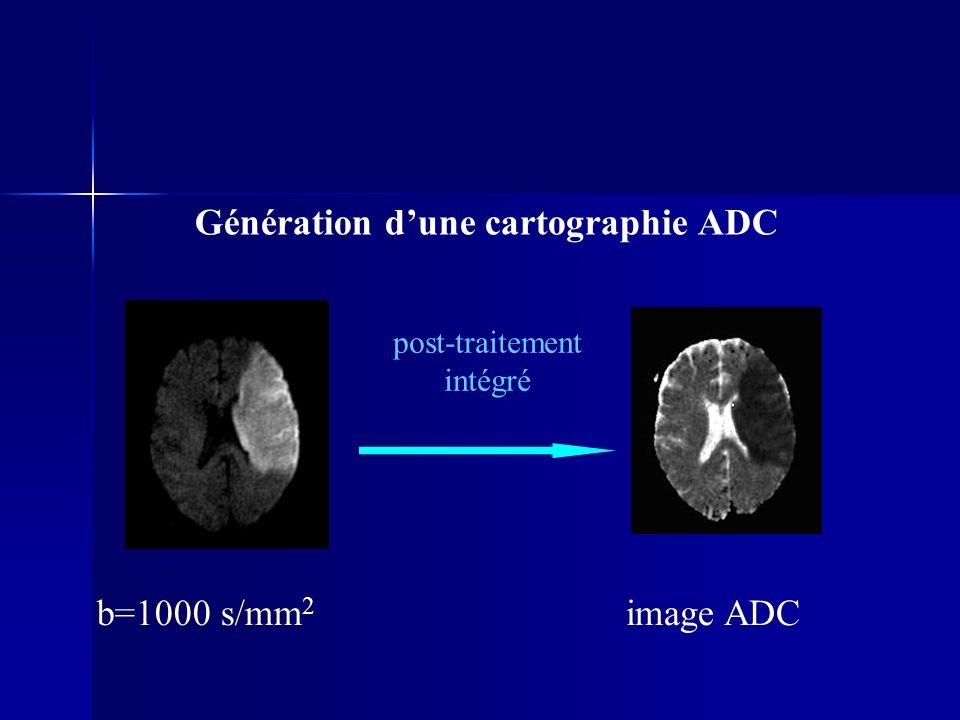 Génération d'une cartographie ADC