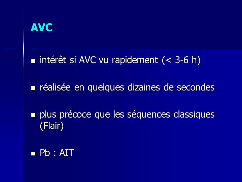AVC intérêt si AVC vu rapidement (< 3-6 h)