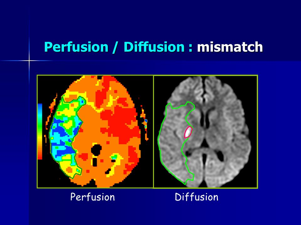 Perfusion / Diffusion : mismatch