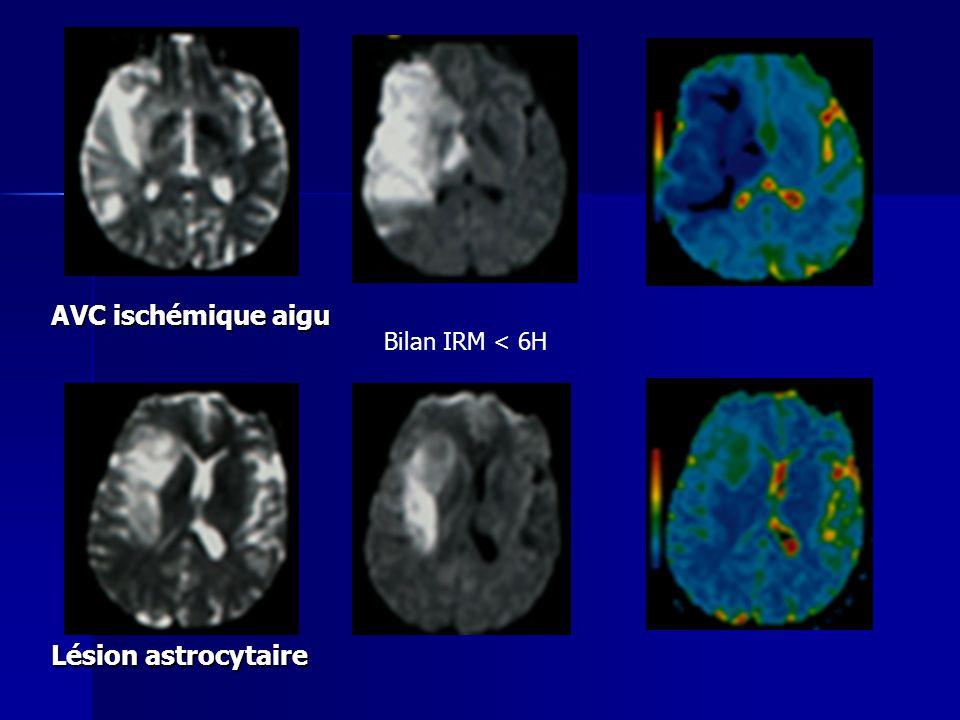 AVC ischémique aigu Bilan IRM < 6H Lésion astrocytaire