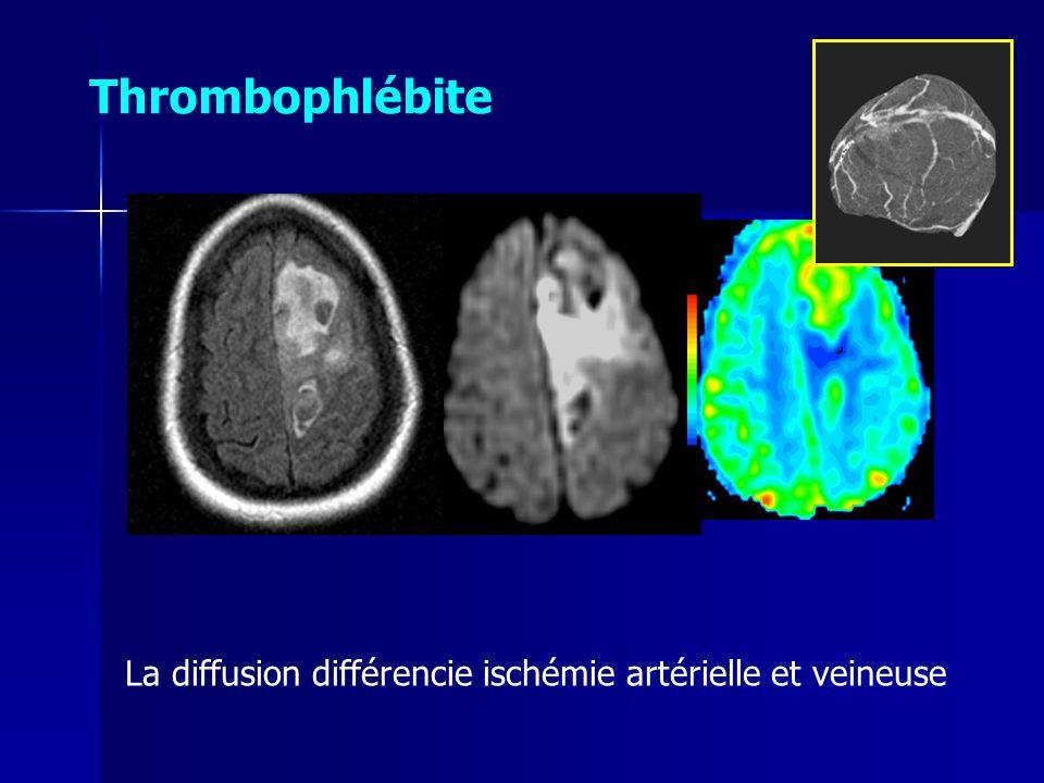 La diffusion différencie ischémie artérielle et veineuse