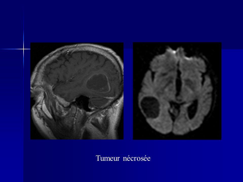 Tumeur nécrosée