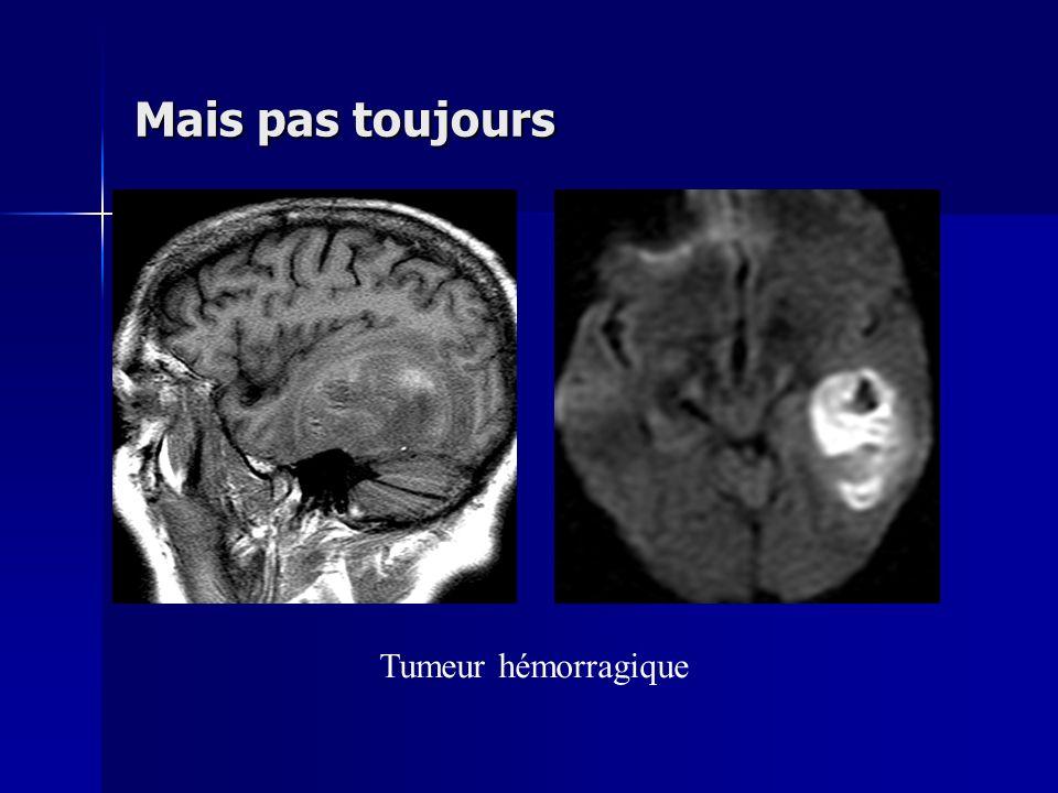Mais pas toujours Tumeur hémorragique