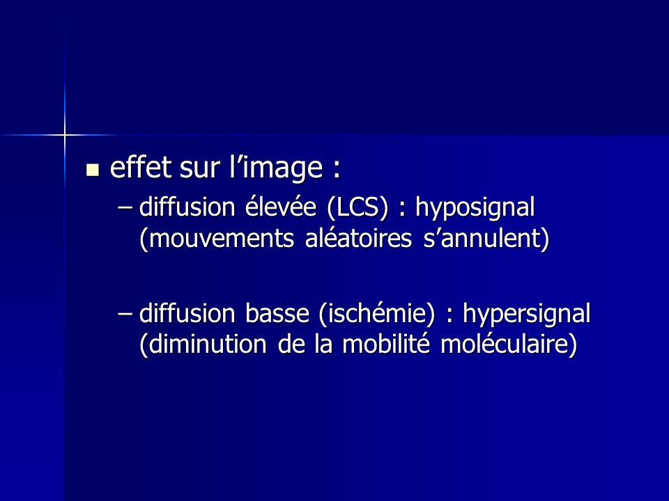 effet sur l'image : diffusion élevée (LCS) : hyposignal (mouvements aléatoires s'annulent)