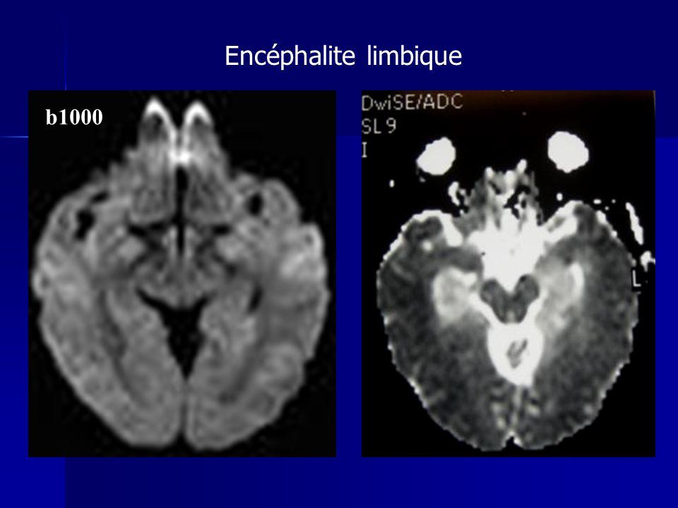 Encéphalite limbique b1000