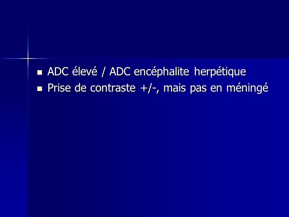 ADC élevé / ADC encéphalite herpétique