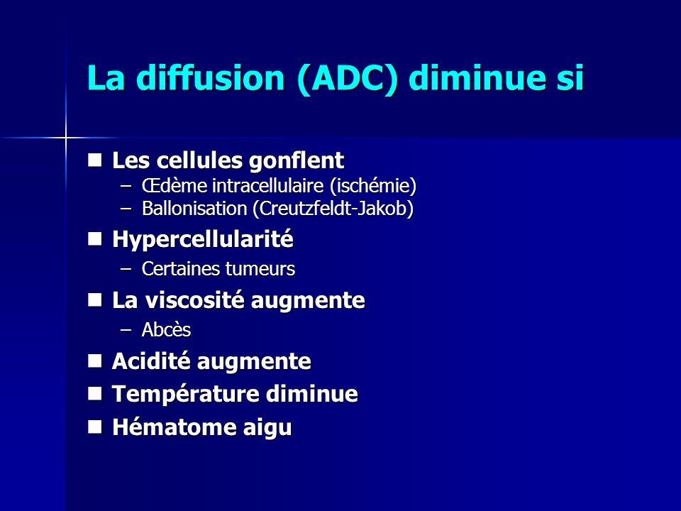 La diffusion (ADC) diminue si