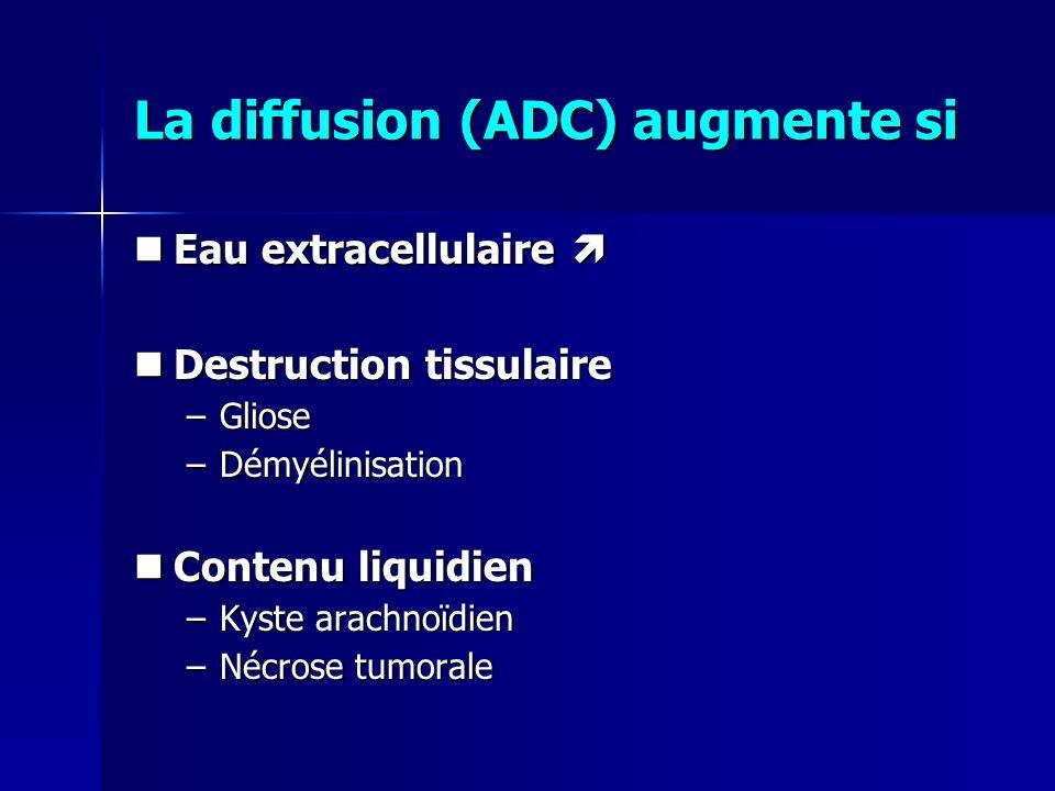 La diffusion (ADC) augmente si