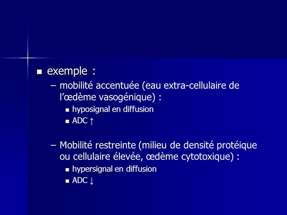 exemple : mobilité accentuée (eau extra-cellulaire de l'œdème vasogénique) : hyposignal en diffusion.