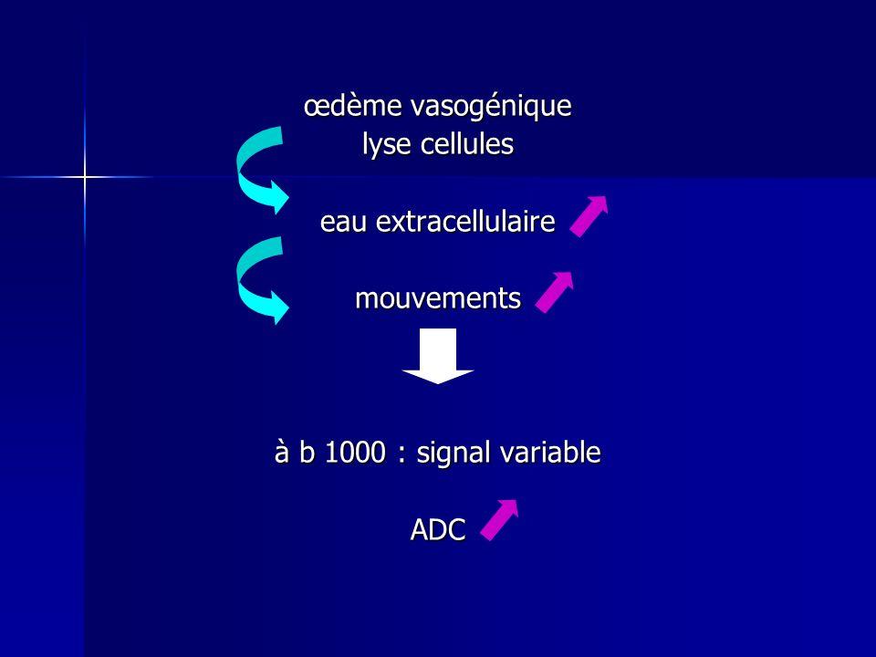 œdème vasogénique lyse cellules eau extracellulaire mouvements à b 1000 : signal variable ADC