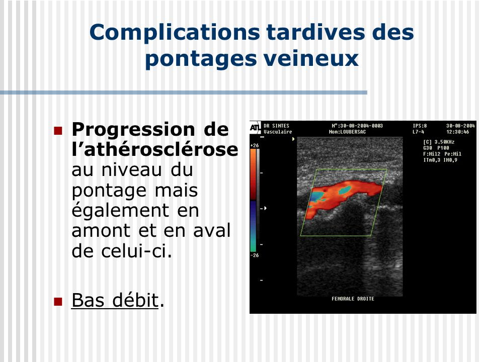 Complications tardives des pontages veineux