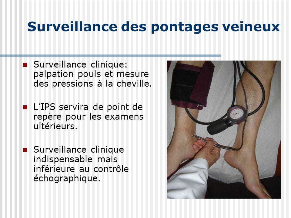 Surveillance des pontages veineux