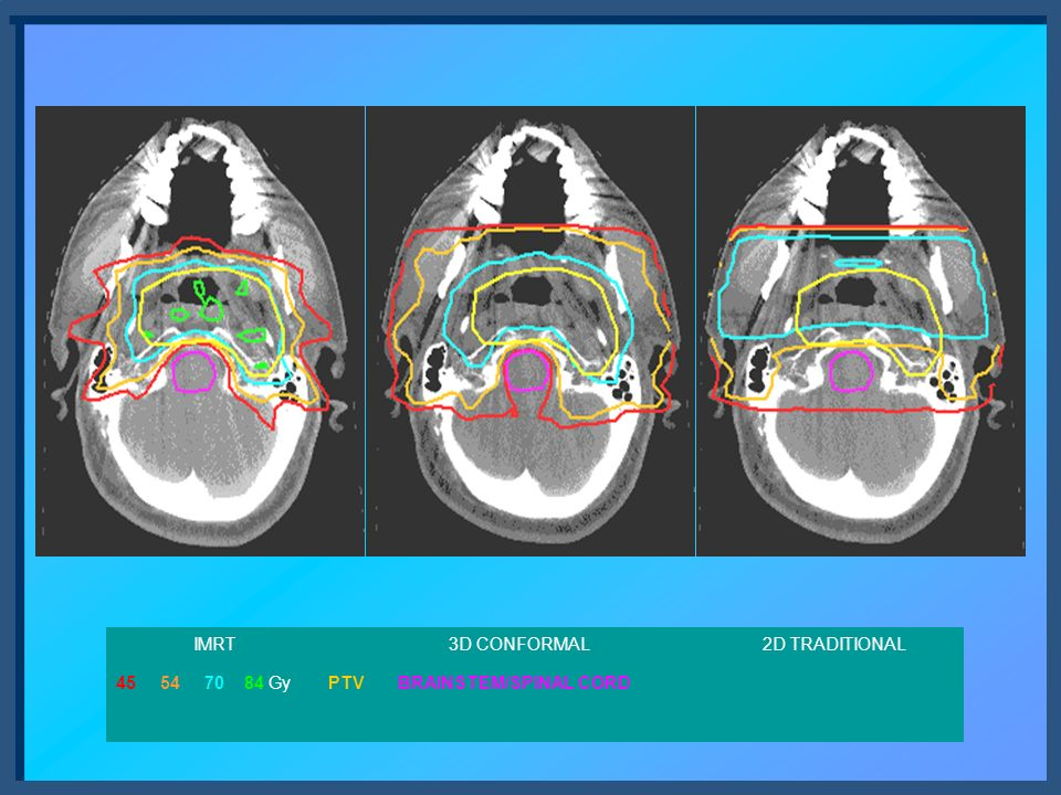 Figure 1: Comparison of IMRT, 3D conformal and traditional parallel opposed field plans for the treatment of primary nasopharynx tumors