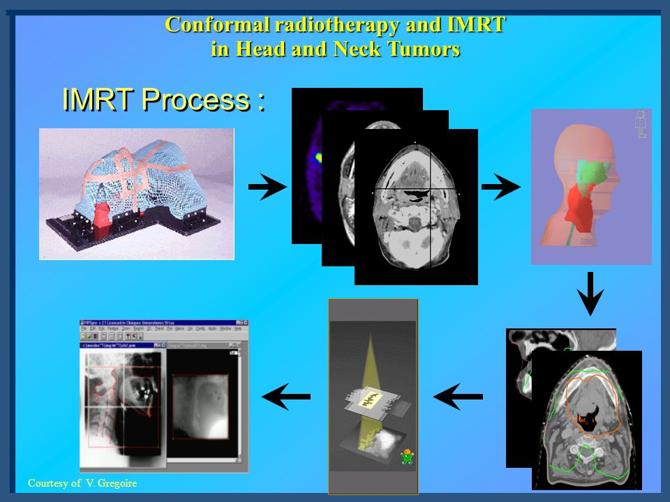 Conformal radiotherapy and IMRT