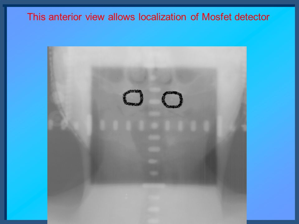 This anterior view allows localization of Mosfet detector