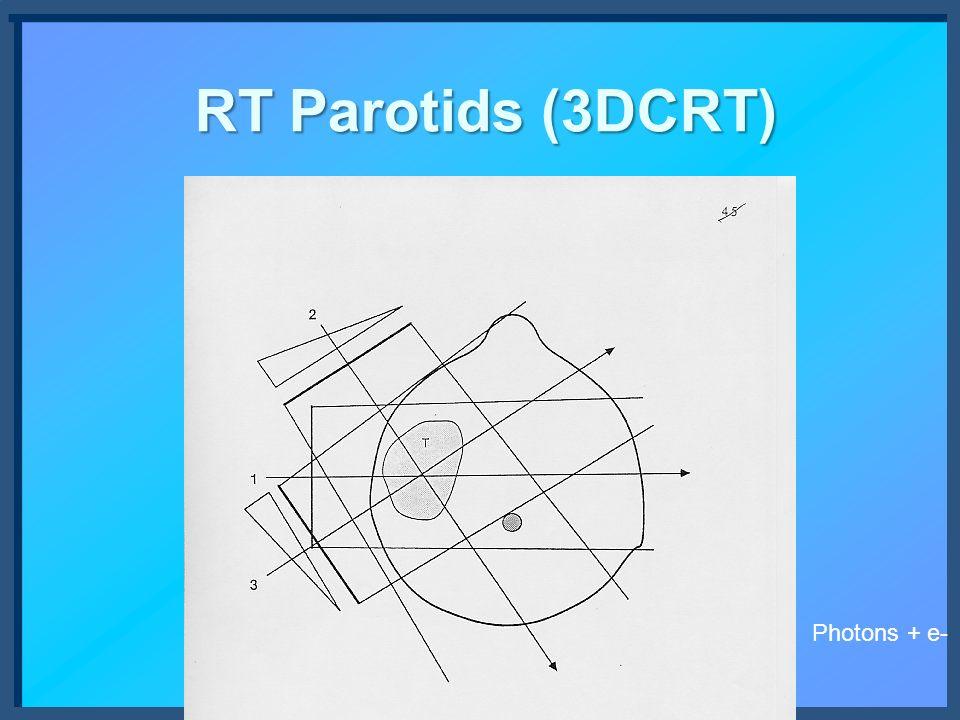 RT Parotids (3DCRT) Photons + e-