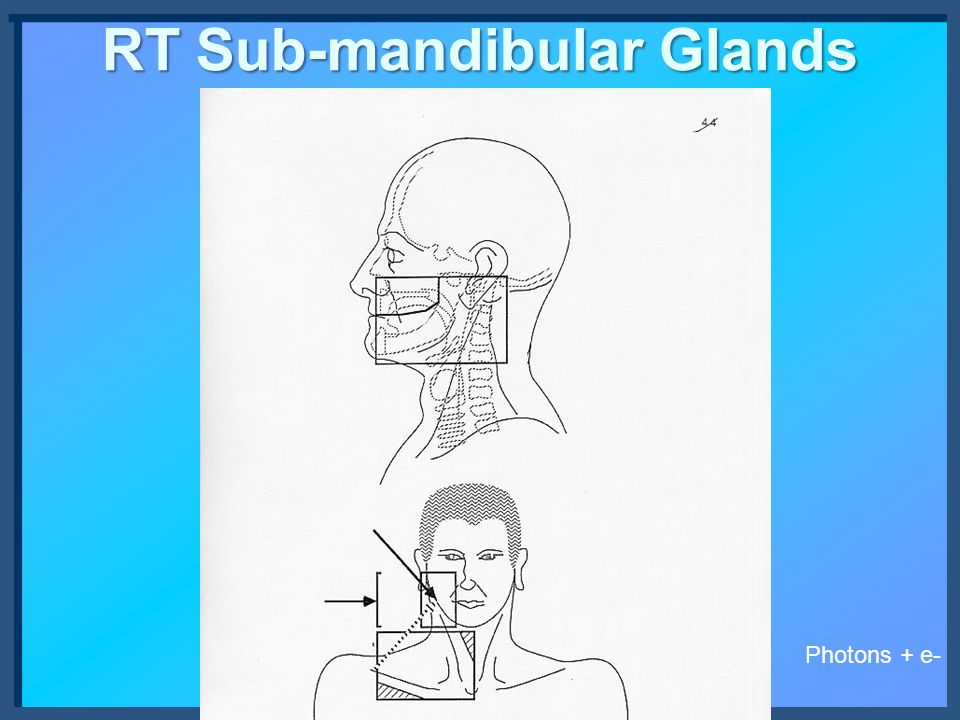 RT Sub-mandibular Glands