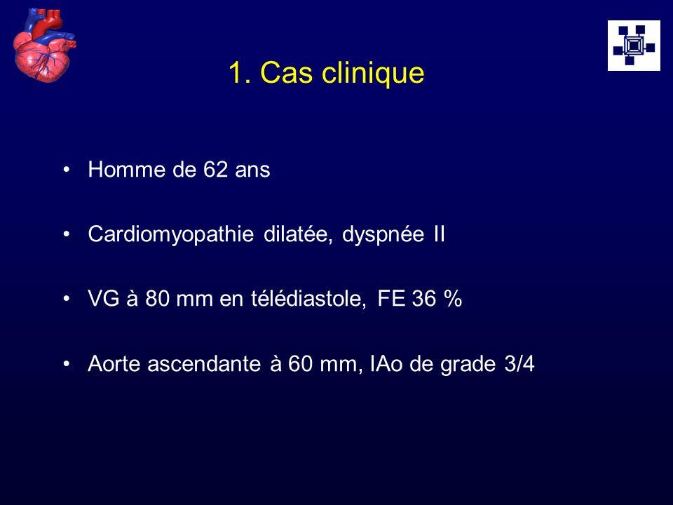 1. Cas clinique Homme de 62 ans Cardiomyopathie dilatée, dyspnée II