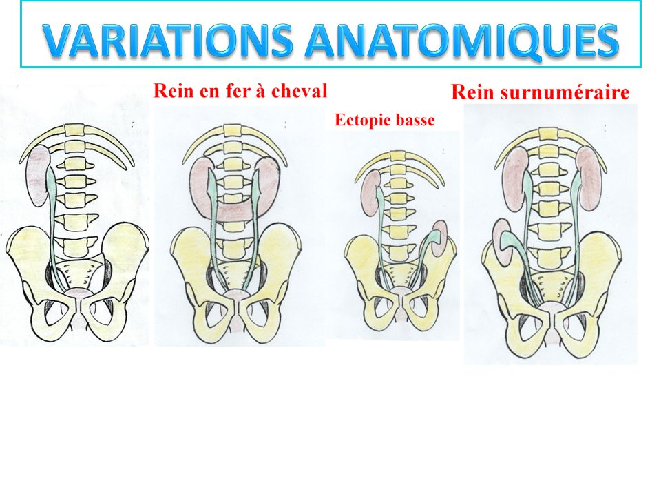 VARIATIONS ANATOMIQUES