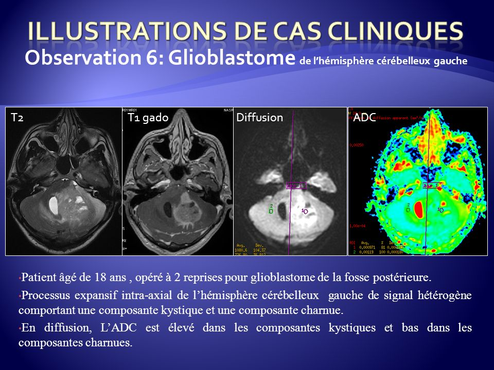 Illustrations de cas cliniques