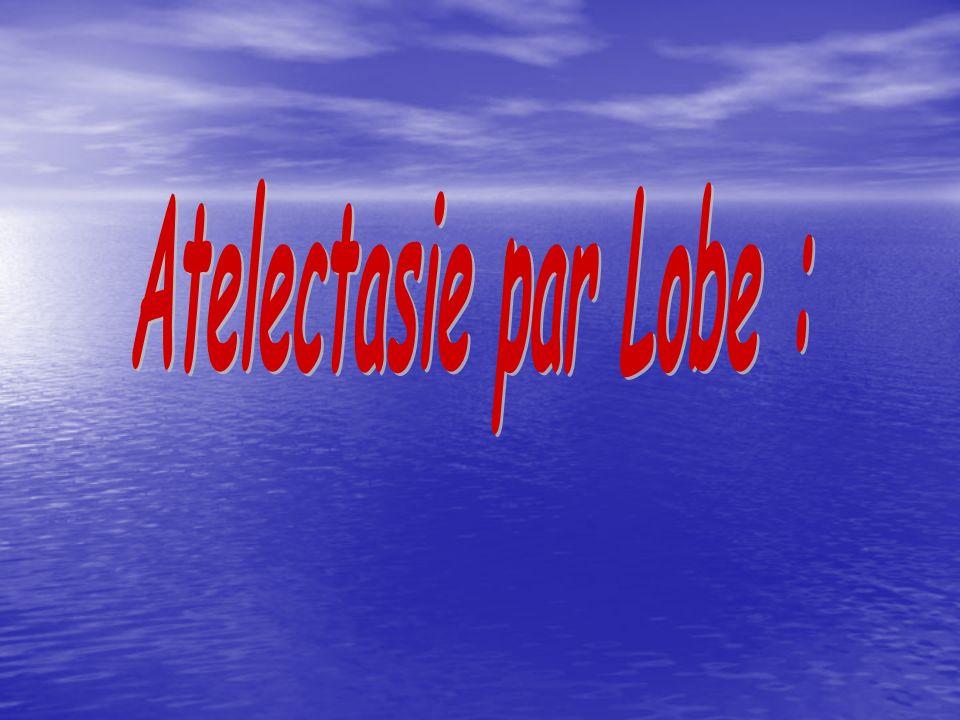 Atelectasie par Lobe :