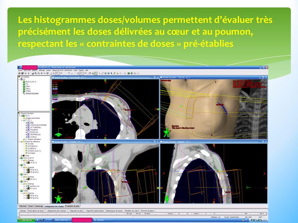 Les histogrammes doses/volumes permettent d'évaluer très précisément les doses délivrées au cœur et au poumon, respectant les « contraintes de doses » pré-établies