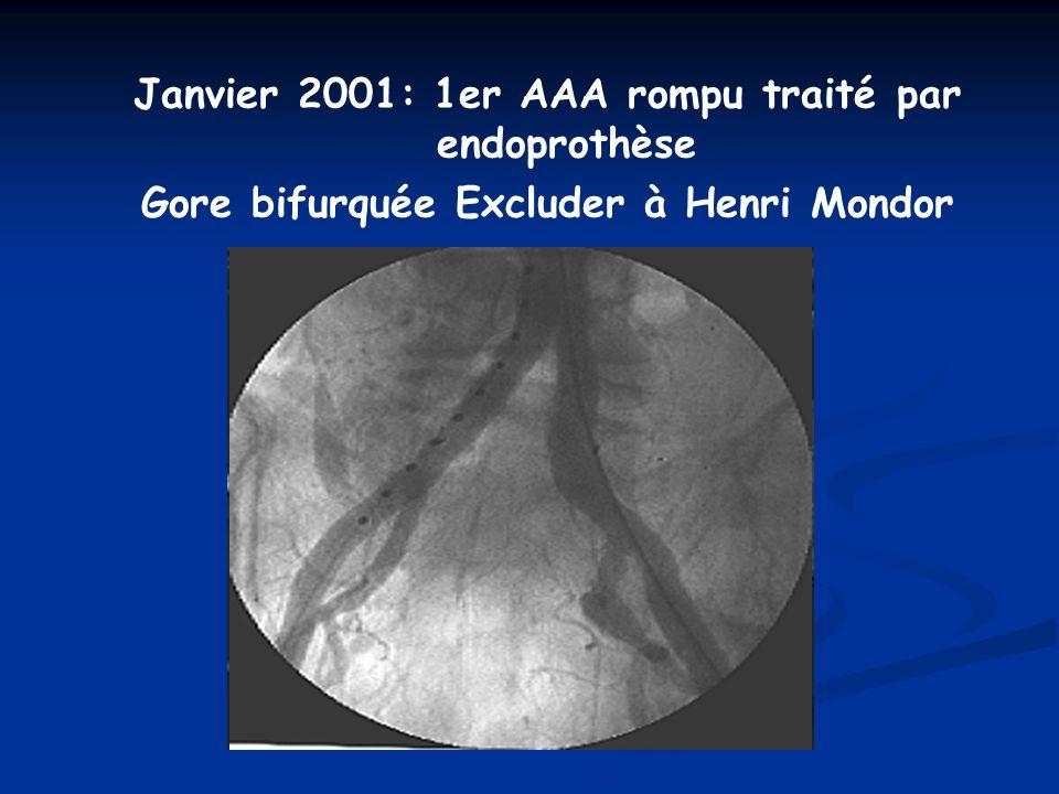 Janvier 2001: 1er AAA rompu traité par endoprothèse